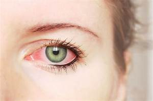 Signs and Symptoms of Pink Eye Conjunctivitis