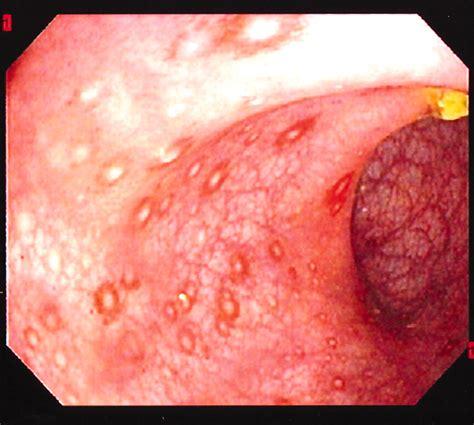 Image Gallery Melena Disease