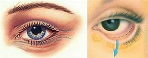 resist eye cream review