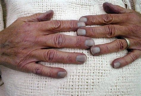 blue fingernails  symptom unpacked