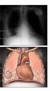 Medical Pictures Info  U2013 Asbestosis