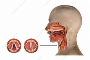 Large Larynx
