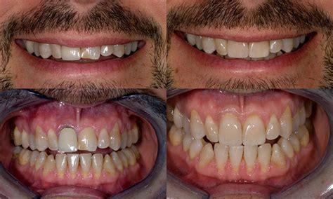 siege auto pivotant cybex dental crowns crown dental practice 100 images say