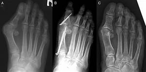 References In Consequences Of Avulsion Fracture Of The