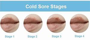 Laser Cold Sore Remedy  U0026 Ulcer Treatment