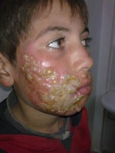 Severe Case Of Herpes Morbid Curiosities Pinterest