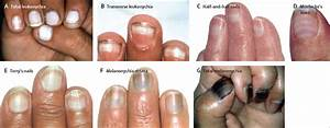nail toxicities induced by systemic anticancer treatments