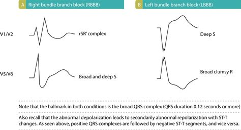 figure  characteristics  bundle branch blocks ecg