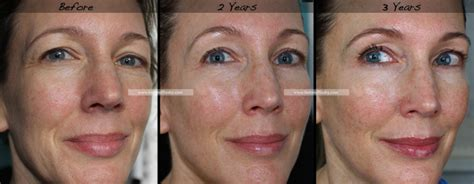 retinol cream for acne scars