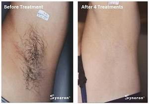 Laser Hair Removal | Permanent Hair Removal | Aesthetic ...