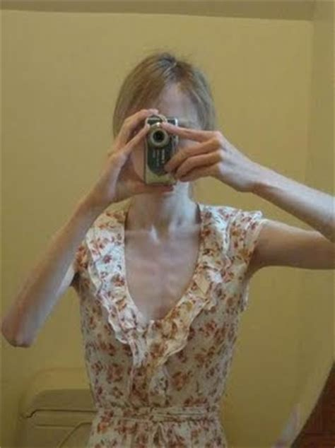 image gallary  anorexic people pictures