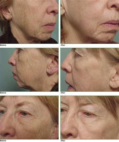 Hair Implants Springfield Ma 01114 Plastic Surgery Plastic Surgery Facelift