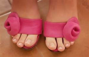 Как избавиться от грибка ногтей на ногах в домашних условиях с помощью йода