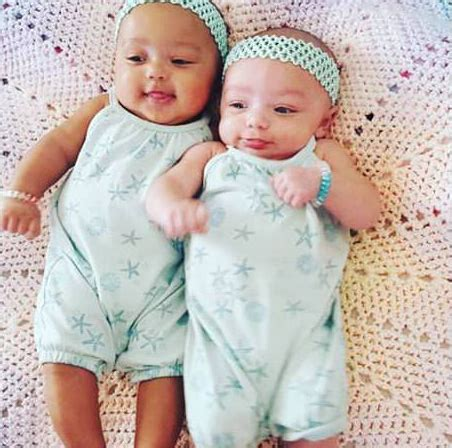 baby skin color these miracle baby were born with different