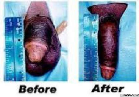 Penis enlargement photos