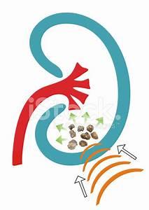 nierenstein harnröhre