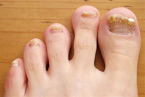 Common Toenail Problem Symptoms, Causes, And Treatment. Gonorrhea Signs. Two Decals. Hostel Logo. Dementia Friendly Decals. Iphone Color Stickers. Commercial Lettering. Ghostly Lettering. Deadpool Corps Logo