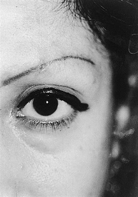 Tretinoin in the removal of eyeliner tattoo - Journal of the American Academy of Dermatology