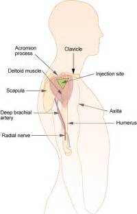 Deltoid Intramuscular Injection Sites