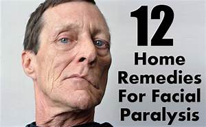 12 Effective Home Remedies For Facial Paralysis