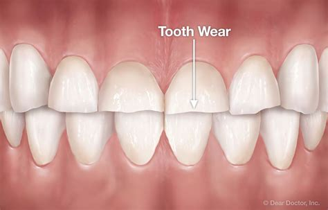 stress  oral habits joseph hudgins orthodontics