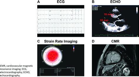 light chain cardiac amyloidosis strategies  promote