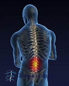 Лечение остеохондроза аппаратом