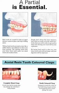 Partial Denture Is Essential