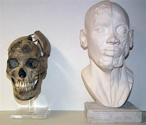 Key Object Page - Surgeons' Hall Museums, Edinburgh