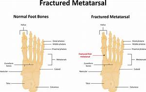 Metatarsalgia  Foot Pain In Ball