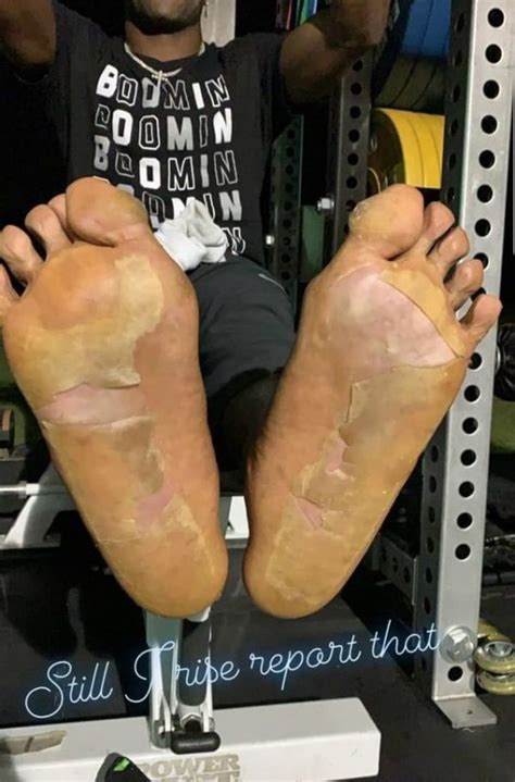 Antonio Brown's Feet Reportedly Suffered Frostbite From ...
