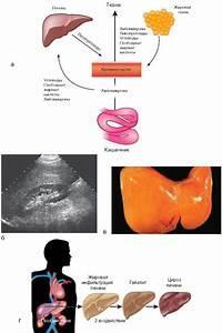 Стеатоз печени лечение препараты