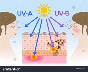 Mechanism Sunburn Aging Skin Stock Vector 444156436