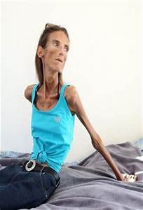 Skinniest Woman In The World; Valeria Levitina | Gist&Rhymes