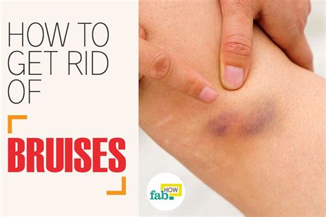 How To Get Rid Of Bruises Fast With Home Remedies  Fab How