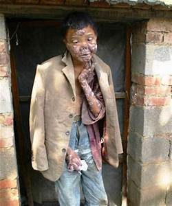 Pin The-most-horrible-skin-diseases-ever-healthmad on ...