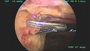 Laparoscopic Lysis Of Adhesions - Enseal