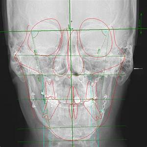 Postoperative Frontal Cephalometric X
