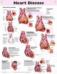 Heart Disease anatomy poster for medical office and classroom