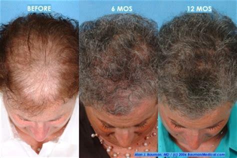 rogaine shedding after 6 months hair transplant bauman