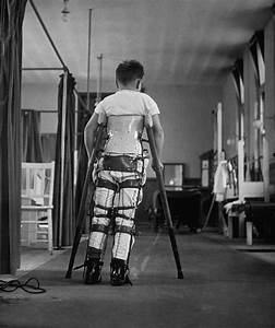 A Child Suffering From Infantile Paralysis Learning To