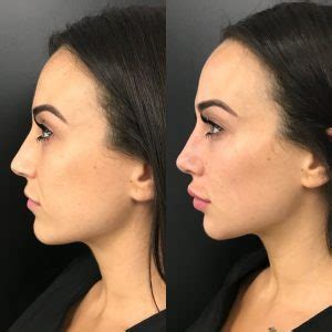 injectable fillers for the face