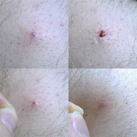 deep ingrown hair  doctor answers