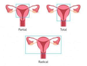 Hysterectomy Treatment For Uterine Fibroids - Unique ...