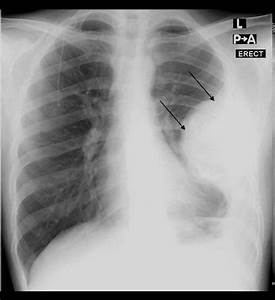 Chest Radiograph Showing A Large Pleural