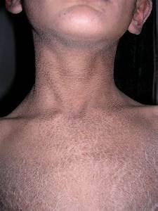 Complaining About Atopic Dermatitis Eczema Dermatology Medbullets Step 2 3