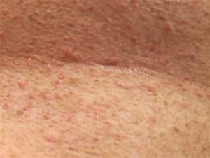 Seaweed Part Ii  U2013 Grover U0026 39 S Skin Rash By Richard Lentz