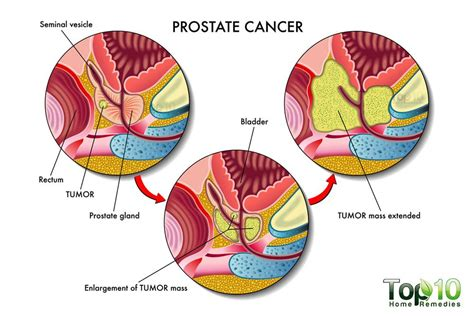 Signs And Symptoms Of Prostate Cancer That You Must Know. Medicare Fee Schedule Florida. Mortgage Lenders St Louis Mo. University Of Maryland Rn To Bsn. Pc Intrusion Detection Ultrasound Tech Course. Famous People In Arkansas Fast Fleet Systems. Cleveland Cord Blood Center Nfl Week 8 Games. Guide To Medicare Supplement Insurance. Difference In Ethernet Cables