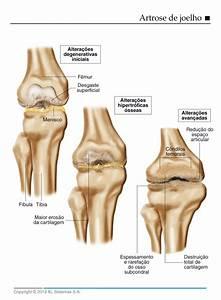 Dor no joelho, sintomas, tratamento