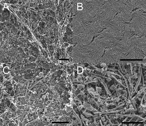 Colony Surfaces Of The Rhizoid And Soft Morphotypes Of F